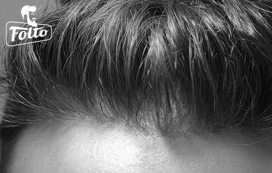 Come valutare il giusto prezzo di una patch cutanea per capelli