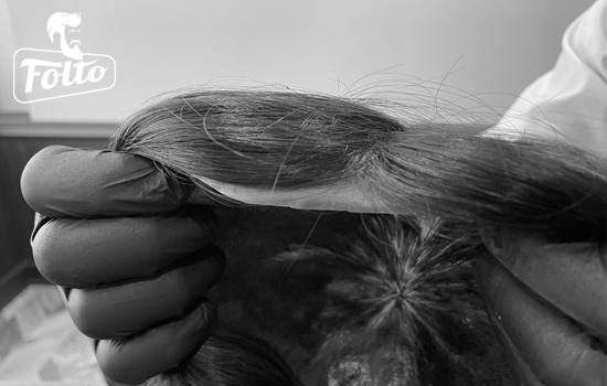 Quanto costa una protesi di capelli Folto